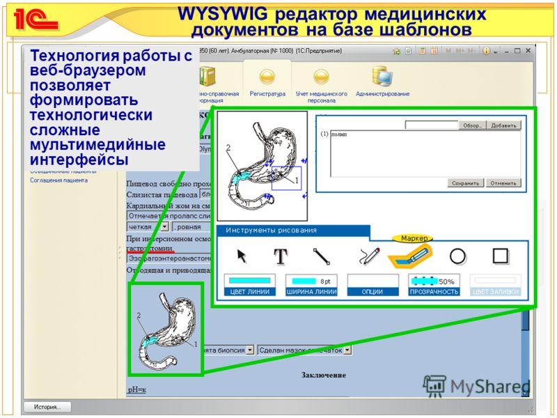 WYSYWIG редактор медицинских документов на базе шаблонов Технология работы с веб-браузером позволяет формировать технологически сложные мультимедийные интерфейсы