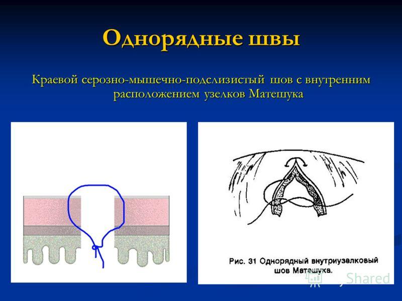 Однорядные швы Краевой серозно-мышечно-подслизистый шов с внутренним расположением узелков Матешука