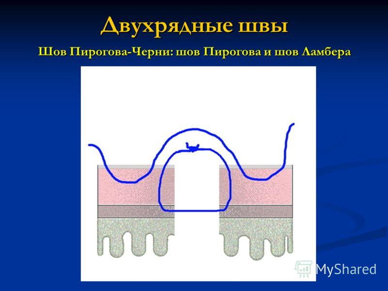 Двухрядные швы Шов Пирогова-Черни: шов Пирогова и шов Ламбера