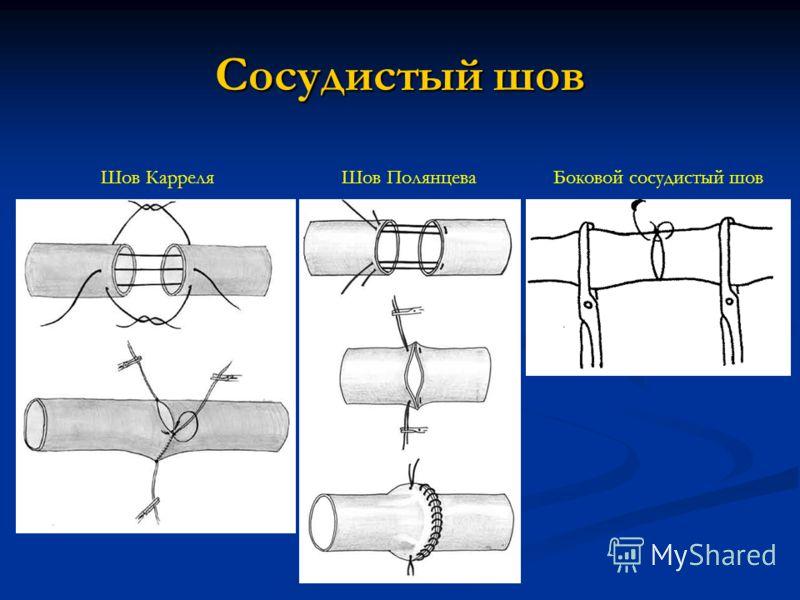 Сосудистый шов Шов КарреляШов ПолянцеваБоковой сосудистый шов