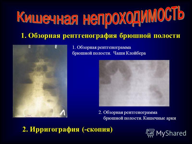 1. Обзорная рентгенография брюшной полости 1. Обзорная рентгенограмма брюшной полости. Чаши Клойбера 2. Обзорная рентгенограмма брюшной полости. Кишечные арки 2. Ирригография (-скопия)