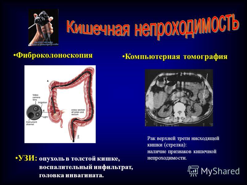 ФиброколоноскопияФиброколоноскопия УЗИ: опухоль в толстой кишке, воспалительный инфильтрат, головка инвагината. Компьютерная томографияКомпьютерная томография Рак верхней трети нисходящей кишки (стрелка): наличие признаков кишечной непроходимости.