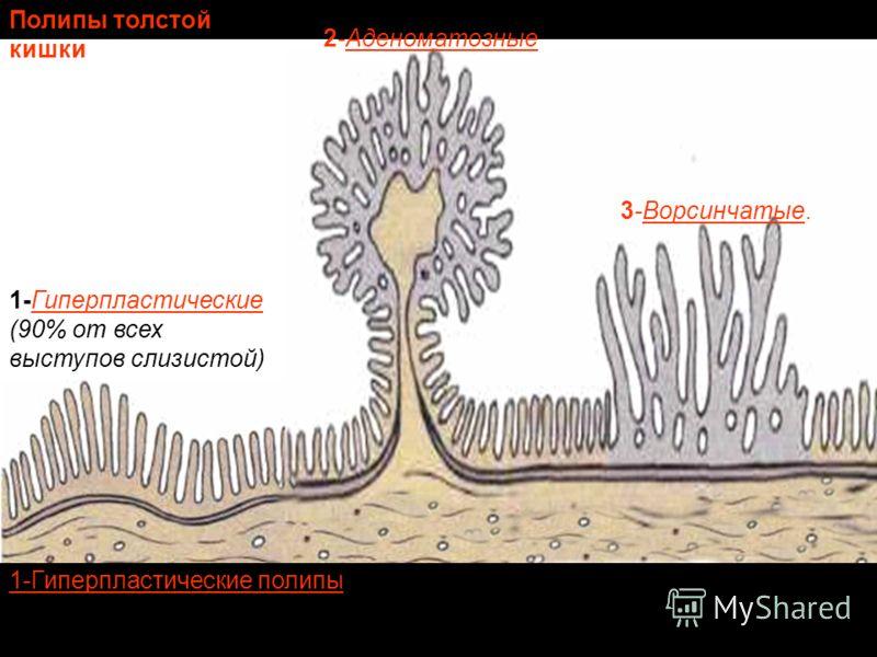1-Гиперпластические (90% от всех выступов слизистой) 2-Аденоматозные 3-Ворсинчатые. Полипы толстой кишки 1-Гиперпластические полипы - мелкие образования, 2-4 мм в диаметре, в них сохранено нормальное строение слизистой, практически эти полипы не мали