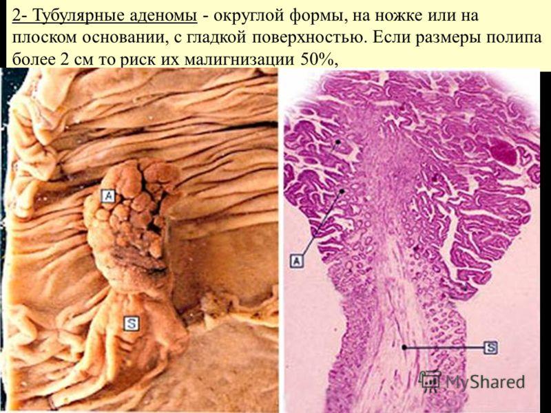 2- Тубулярные аденомы - округлой формы, на ножке или на плоском основании, с гладкой поверхностью. Если размеры полипа более 2 см то риск их малигнизации 50%,