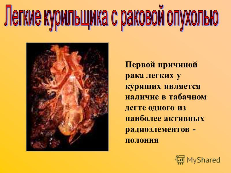 Первой причиной рака легких у курящих является наличие в табачном дегте одного из наиболее активных радиоэлементов - полония