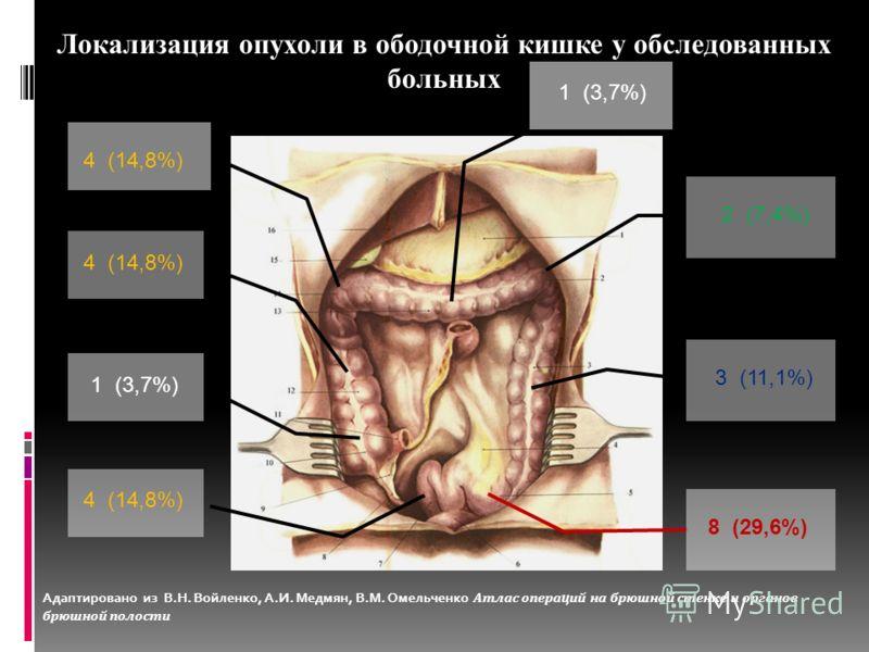 Локализация опухоли в ободочной кишке у обследованных больных 1 (3,7%) 4 (14,8%) 1 (3,7%) 2 (7,4%) 3 (11,1%) 8 (29,6%) 4 (14,8%) Адаптировано из В.Н. Войленко, А.И. Медмян, В.М. Омельченко Атлас операций на брюшной стенке и органов брюшной полости