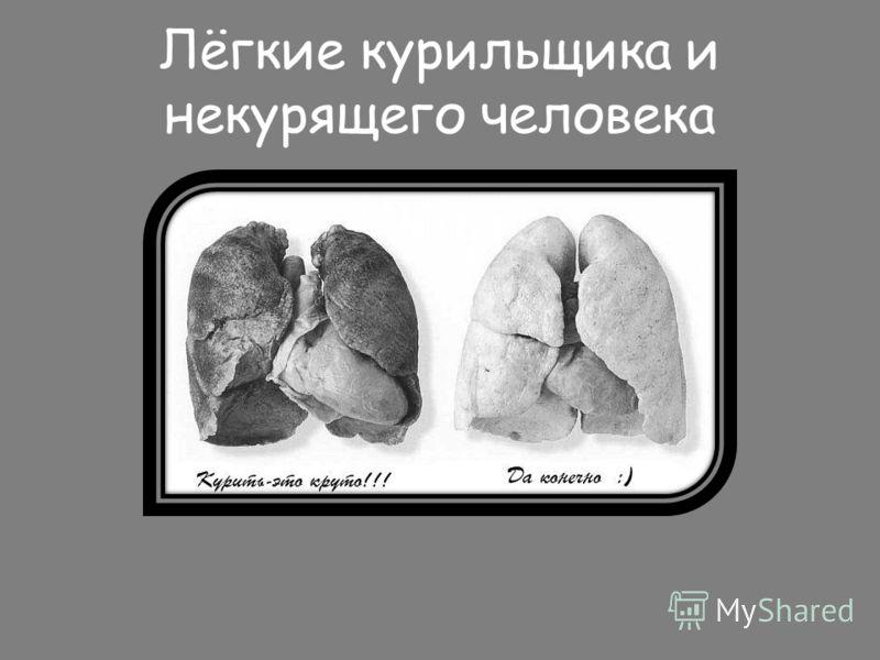 Лёгкие курильщика и некурящего человека