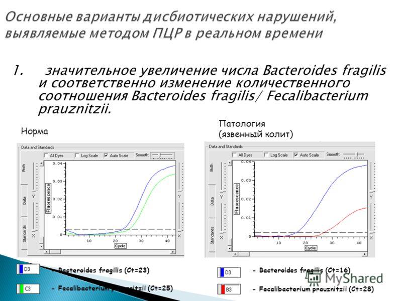 1. значительное увеличение числа Bacteroides fragilis и соответственно изменение количественного соотношения Bacteroides fragilis/ Fecalibacterium prauznitzii. Норма Патология (язвенный колит) - Bacteroides fragilis (Сt=23) - Fecalibacterium prauznit