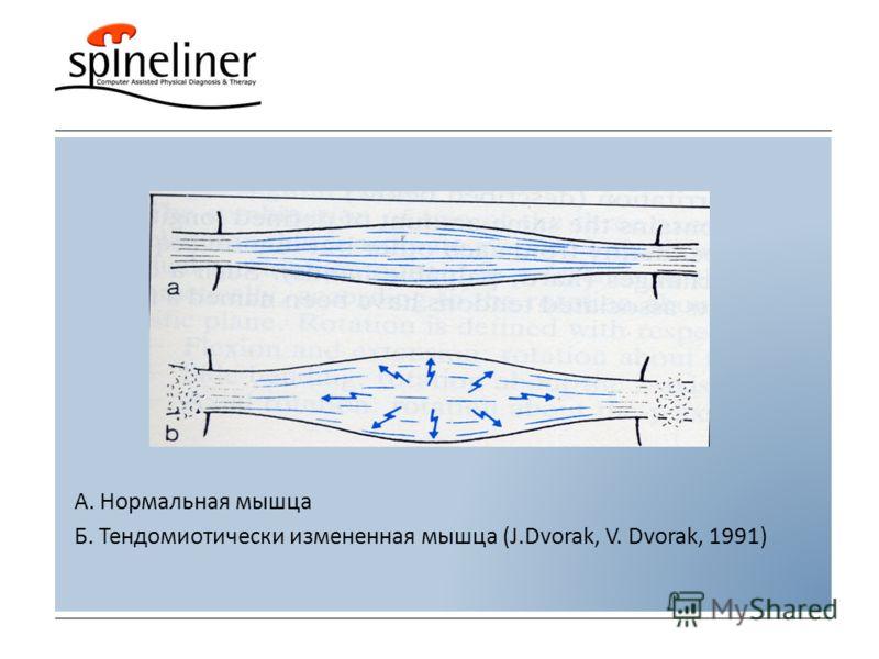 А. Нормальная мышца Б. Тендомиотически измененная мышца (J.Dvorak, V. Dvorak, 1991)