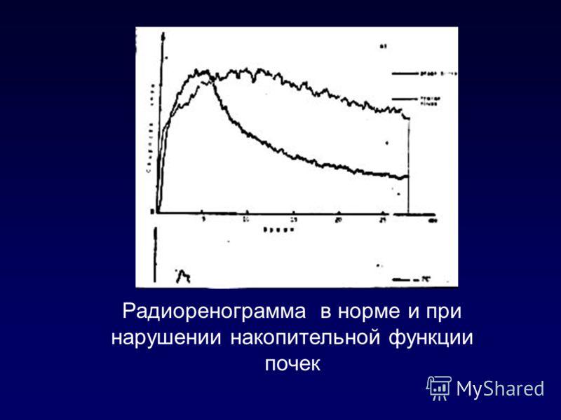 Радиоренограмма в норме и при нарушении накопительной функции почек