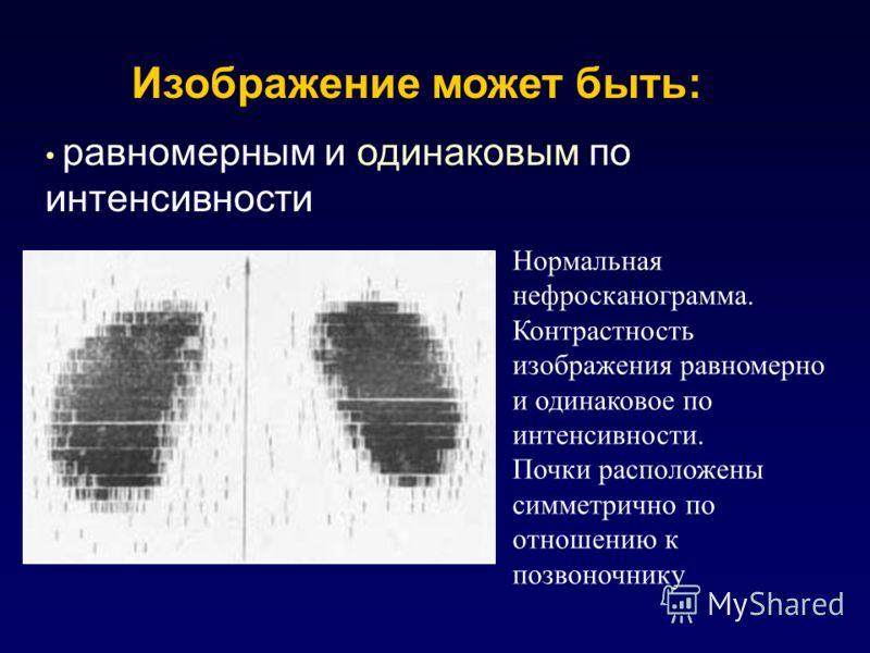 Изображение может быть: равномерным и одинаковым по интенсивности Нормальная нефросканограмма. Контрастность изображения равномерно и одинаковое по интенсивности. Почки расположены симметрично по отношению к позвоночнику