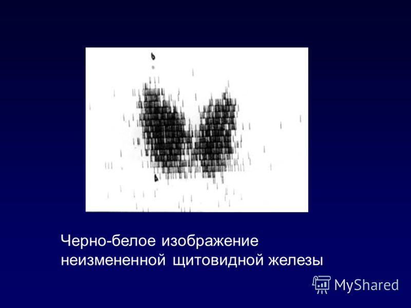 Черно-белое изображение неизмененной щитовидной железы