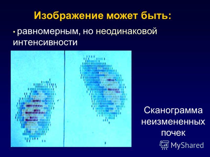 Сканограмма неизмененных почек Изображение может быть: равномерным, но неодинаковой интенсивности
