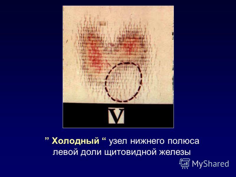 Холодный узел нижнего полюса левой доли щитовидной железы