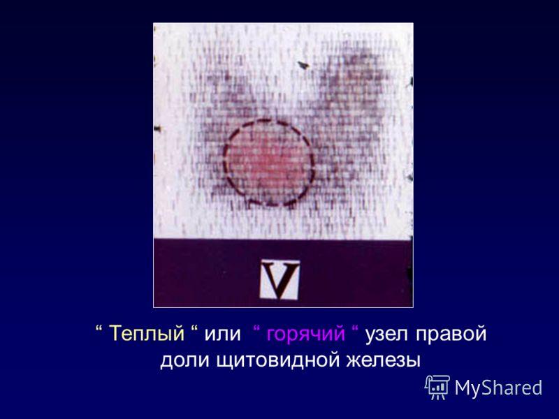 Теплый или горячий узел правой доли щитовидной железы