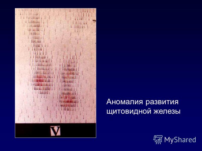 Аномалия развития щитовидной железы