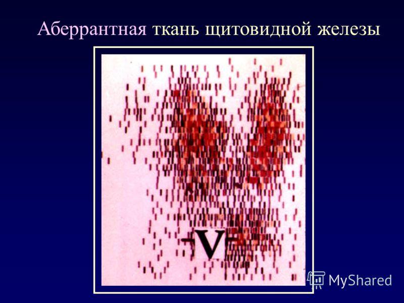 Аберрантная ткань щитовидной железы