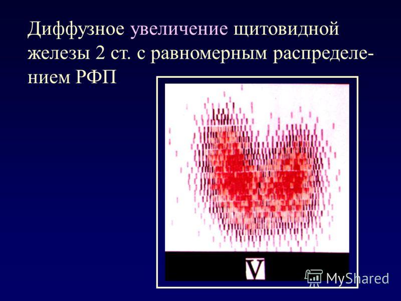 Диффузное увеличение щитовидной железы 2 ст. с равномерным распределе- нием РФП