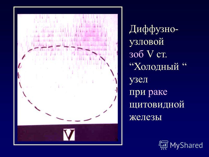 Диффузно- узловой зоб V ст. Холодный узел при раке щитовидной железы