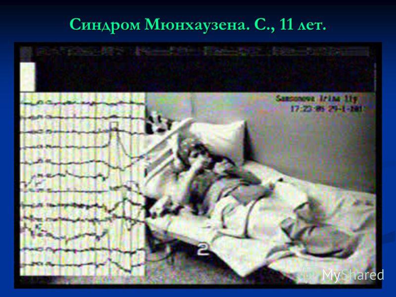 Синдром Мюнхаузена. С., 11 лет.