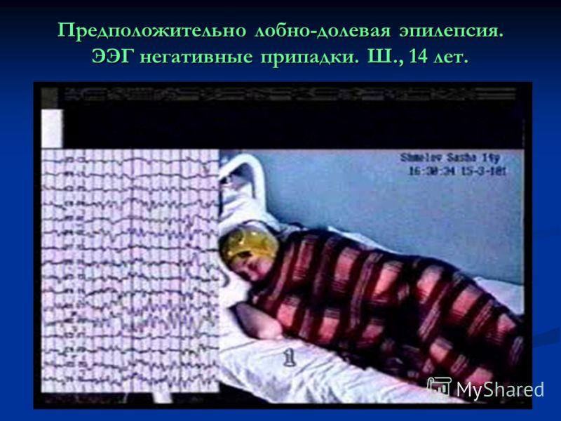 Предположительно лобно-долевая эпилепсия. ЭЭГ негативные припадки. Ш., 14 лет.