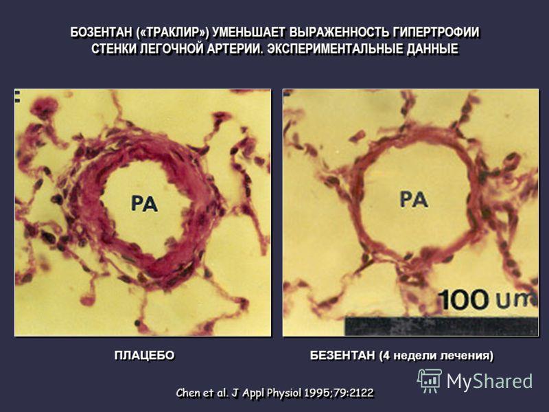 Chen et al. J Appl Physiol 1995;79:2122 ПЛАЦЕБО БЕЗЕНТАН (4 недели лечения) БОЗЕНТАН («ТРАКЛИР») УМЕНЬШАЕТ ВЫРАЖЕННОСТЬ ГИПЕРТРОФИИ СТЕНКИ ЛЕГОЧНОЙ АРТЕРИИ. ЭКСПЕРИМЕНТАЛЬНЫЕ ДАННЫЕ