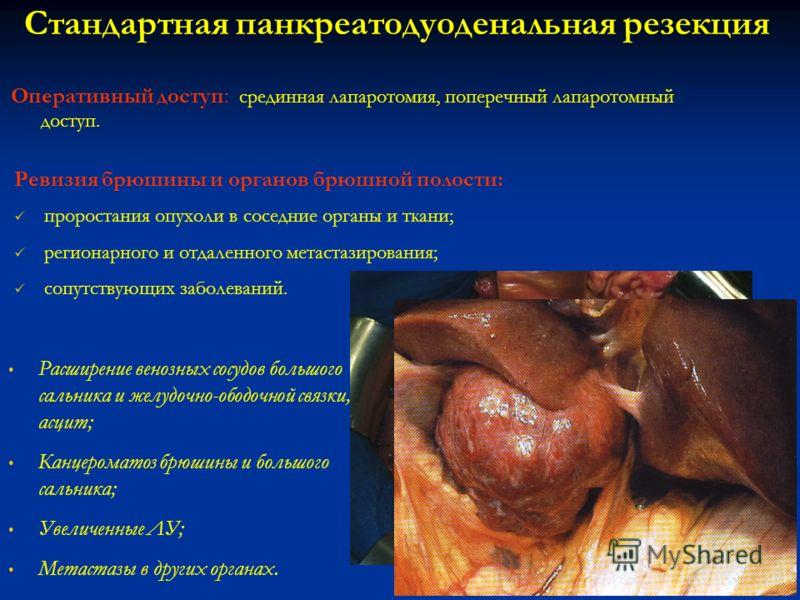Стандартная панкреатодуоденальная резекция Оперативный доступ: срединная лапаротомия, поперечный лапаротомный доступ. Ревизия брюшины и органов брюшной полости: проростания опухоли в соседние органы и ткани; регионарного и отдаленного метастазировани
