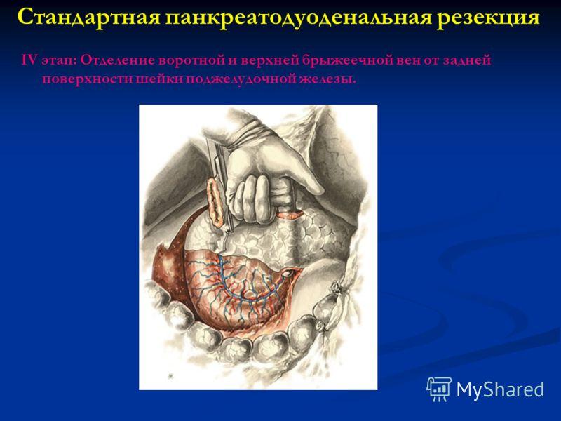 Стандартная панкреатодуоденальная резекция IV этап: Отделение воротной и верхней брыжеечной вен от задней поверхности шейки поджелудочной железы.