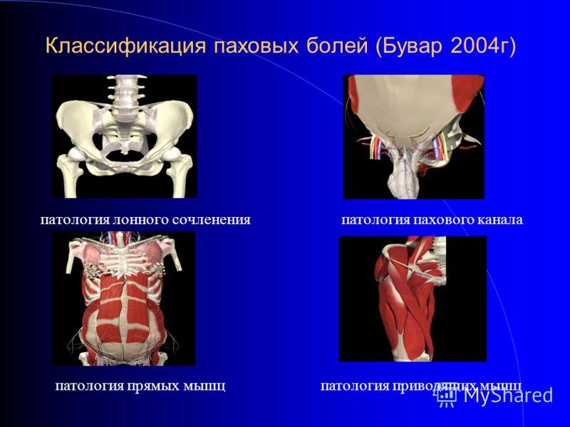 Классификация паховых болей (Бувар 2004г) патология лонного сочлененияпатология пахового канала патология прямых мышцпатология приводящих мышц