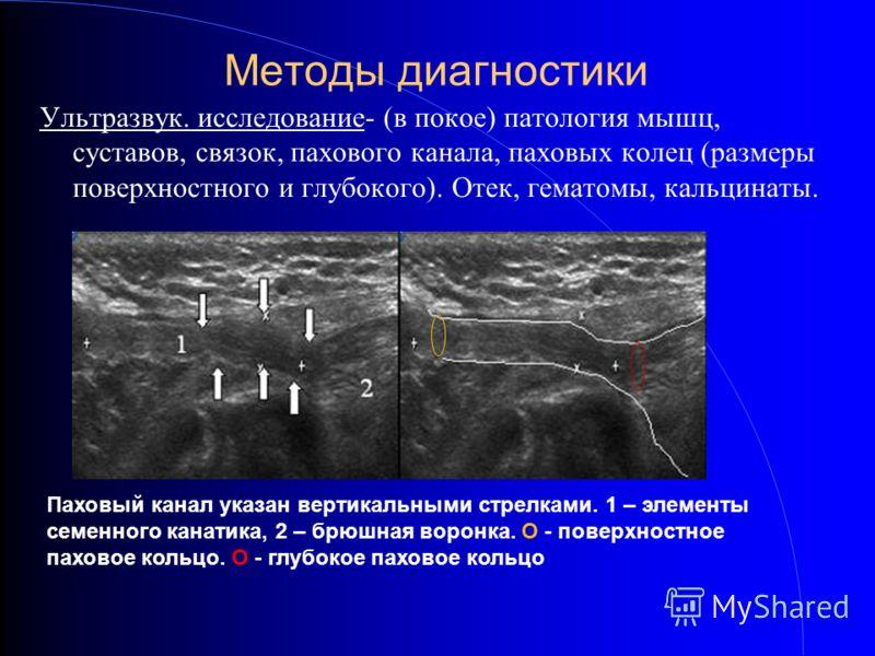 Методы диагностики Ультразвук. исследование- (в покое) патология мышц, суставов, связок, пахового канала, паховых колец (размеры поверхностного и глубокого). Отек, гематомы, кальцинаты. Паховый канал указан вертикальными стрелками. 1 – элементы семен
