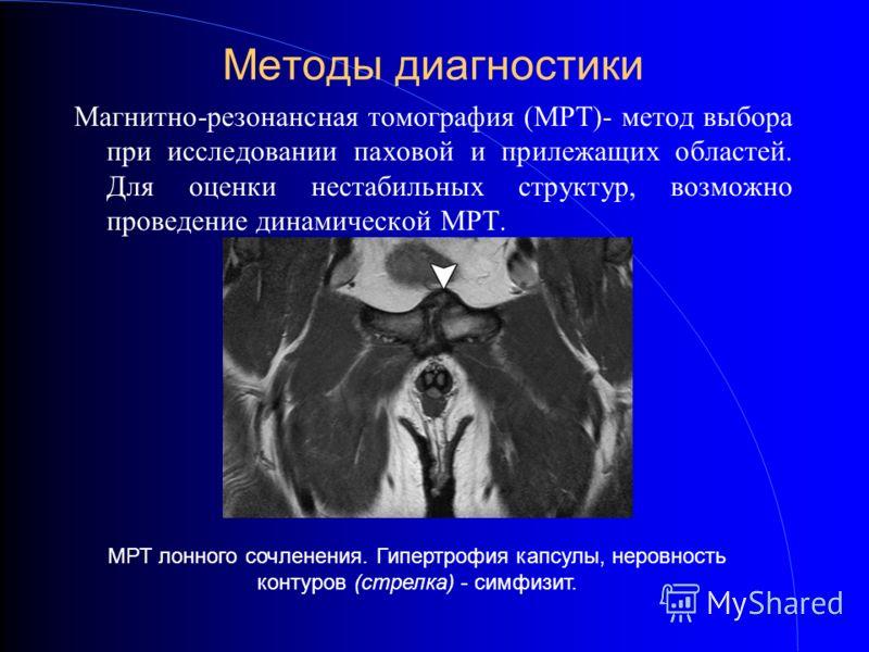 Методы диагностики Магнитно-резонансная томография (МРТ)- метод выбора при исследовании паховой и прилежащих областей. Для оценки нестабильных структур, возможно проведение динамической МРТ. МРТ лонного сочленения. Гипертрофия капсулы, неровность кон