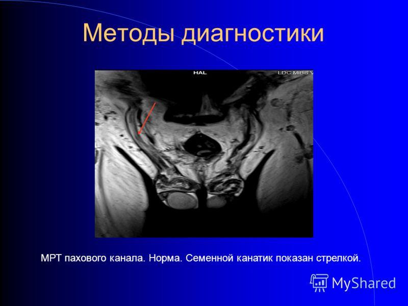 Методы диагностики МРТ пахового канала. Норма. Семенной канатик показан стрелкой.