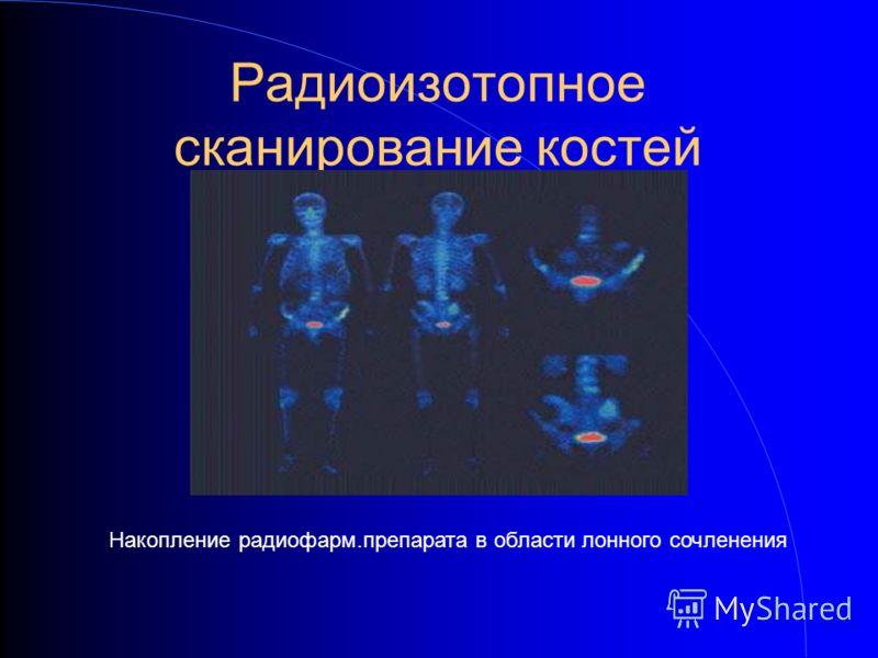 Радиоизотопное сканирование костей Накопление радиофарм.препарата в области лонного сочленения