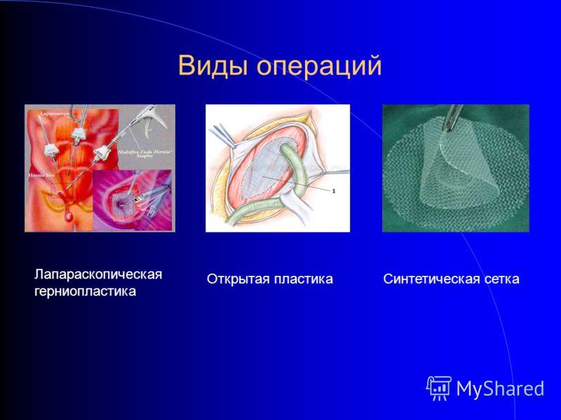 Виды операций Лапараскопическая герниопластика Открытая пластикаСинтетическая сетка
