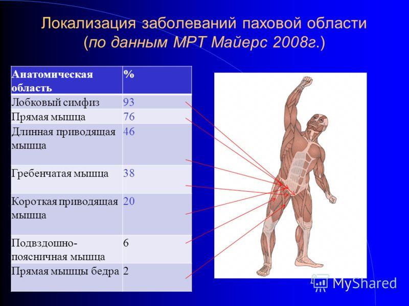 Локализация заболеваний паховой области (по данным МРТ Майерс 2008г.) Анатомическая область % Лобковый симфиз93 Прямая мышца76 Длинная приводящая мышца 46 Гребенчатая мышца38 Короткая приводящая мышца 20 Подвздошно- поясничная мышца 6 Прямая мышцы бе