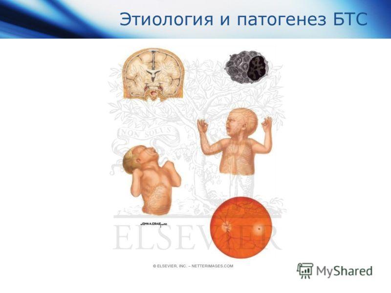 Этиология и патогенез БТС