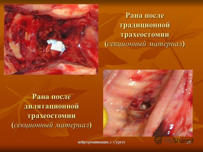 нейрореанимация, г. Сургут25 Рана после традиционной трахеостомии (секционный материал) Рана после дилятационной трахеостомии (секционный материал)