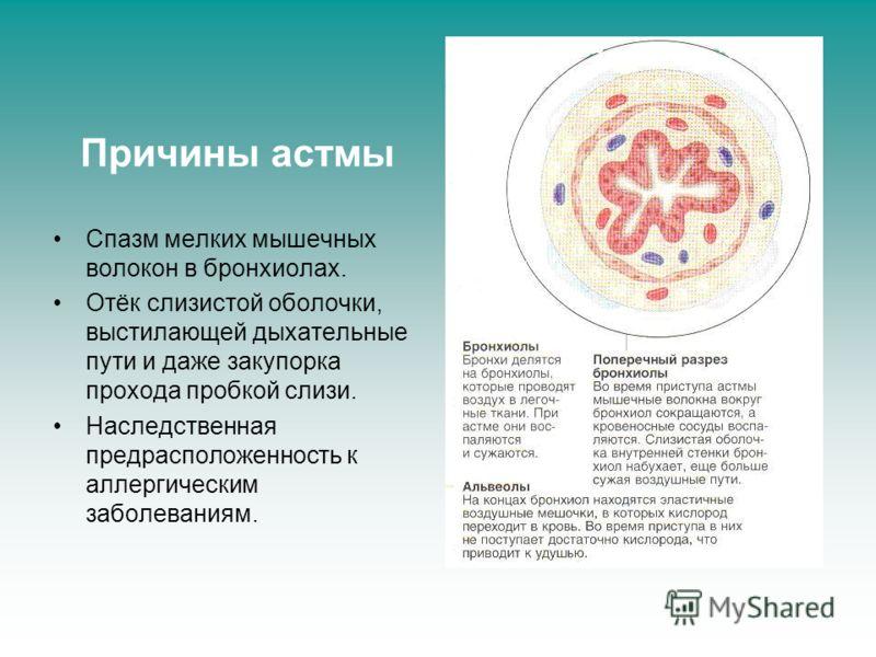 Причины астмы Спазм мелких мышечных волокон в бронхиолах. Отёк слизистой оболочки, выстилающей дыхательные пути и даже закупорка прохода пробкой слизи. Наследственная предрасположенность к аллергическим заболеваниям.