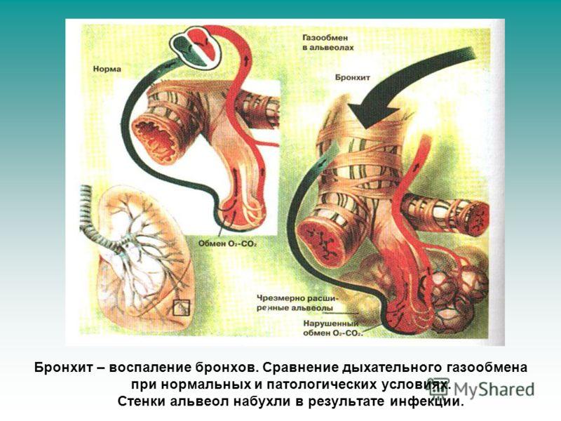 Бронхит – воспаление бронхов. Сравнение дыхательного газообмена при нормальных и патологических условиях. Стенки альвеол набухли в результате инфекции.