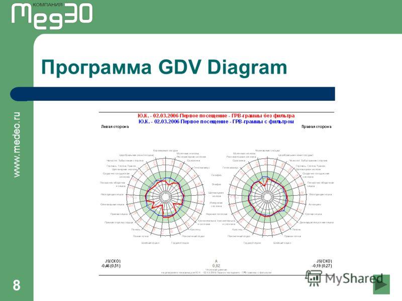 www.medeo.ru 8 Программа GDV Diagram