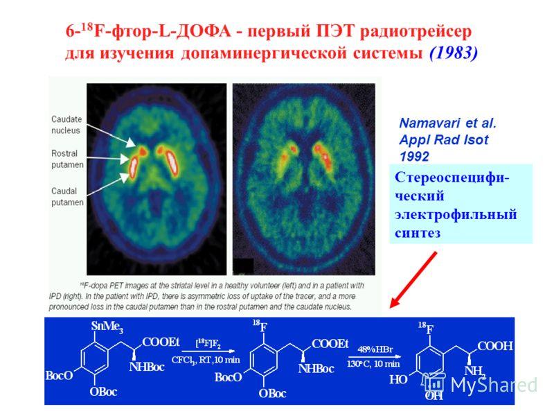 6- 18 F-фтор-L-ДОФА - первый ПЭТ радиотрейсер для изучения допаминергической системы (1983) Стереоспецифи- ческий электрофильный синтез Namavari et al. Appl Rad Isot 1992