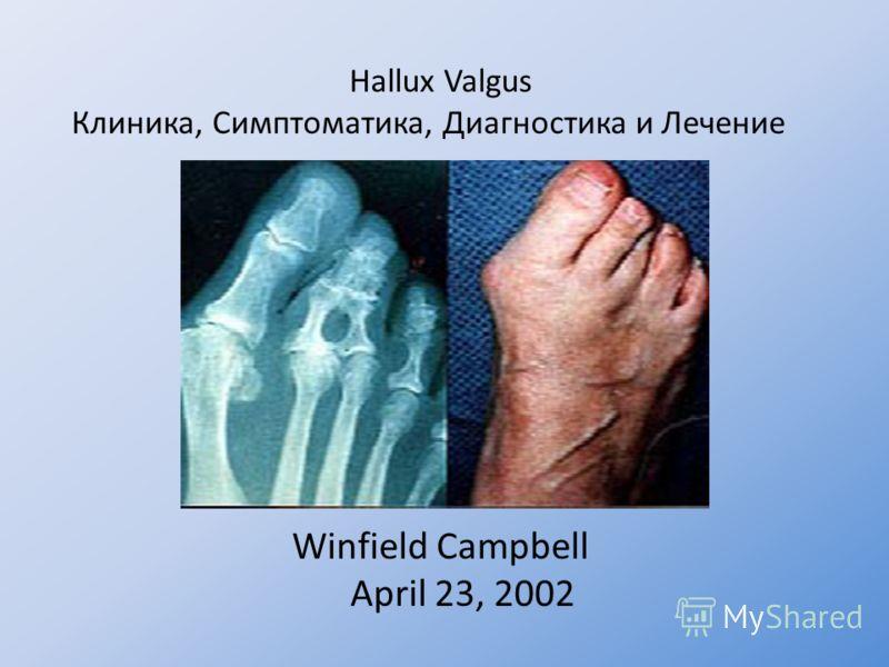 Hallux Valgus Клиника, Симптоматика, Диагностика и Лечение Winfield Campbell April 23, 2002