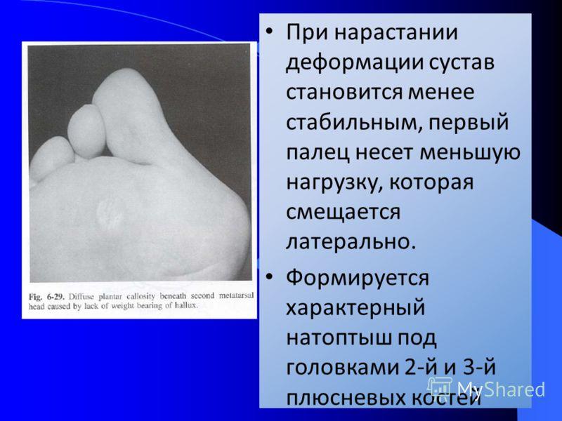 При нарастании деформации сустав становится менее стабильным, первый палец несет меньшую нагрузку, которая смещается латерально. Формируется характерный натоптыш под головками 2-й и 3-й плюсневых костей