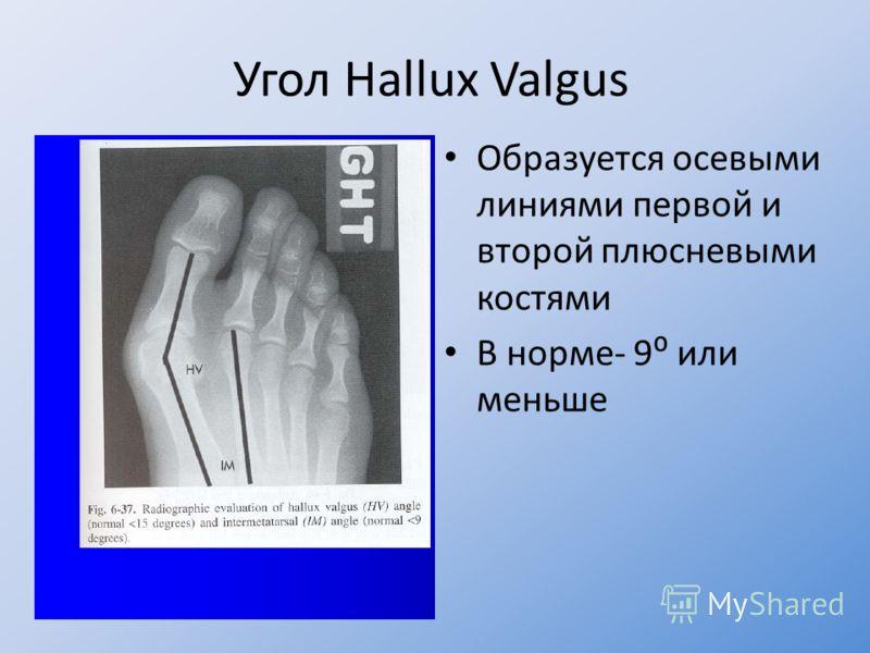 Образуется осевыми линиями первой и второй плюсневыми костями В норме- 9 или меньше Угол Hallux Valgus