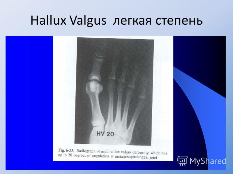 Hallux Valgus легкая степень