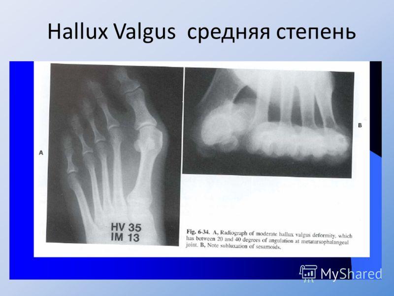 Hallux Valgus средняя степень