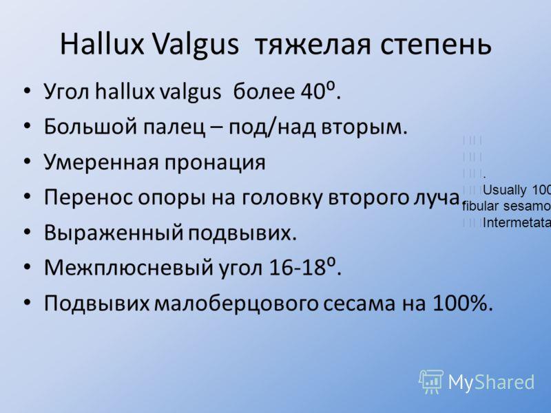 Hallux Valgus тяжелая степень Угол hallux valgus более 40. Большой палец – под/над вторым. Умеренная пронация Перенос опоры на головку второго луча. Выраженный подвывих. Межплюсневый угол 16-18. Подвывих малоберцового сесама на 100%.. Usually 100% la