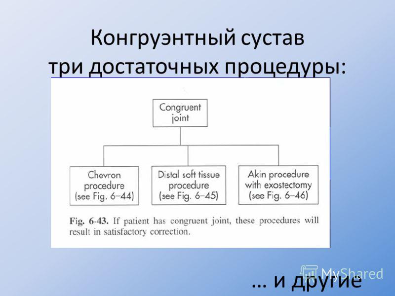 Конгруэнтный сустав три достаточных процедуры: … и другие