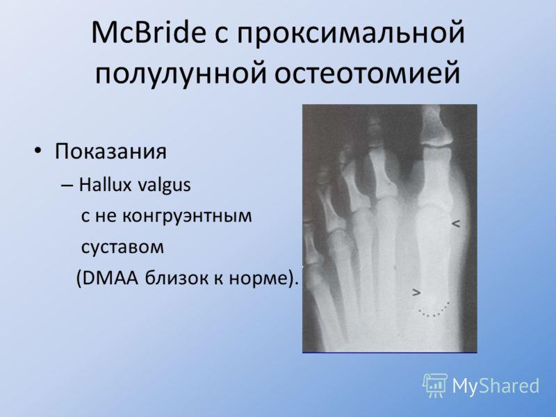 McBride с проксимальной полулунной остеотомией Показания – Hallux valgus с не конгруэнтным суставом (DMAA близок к норме).