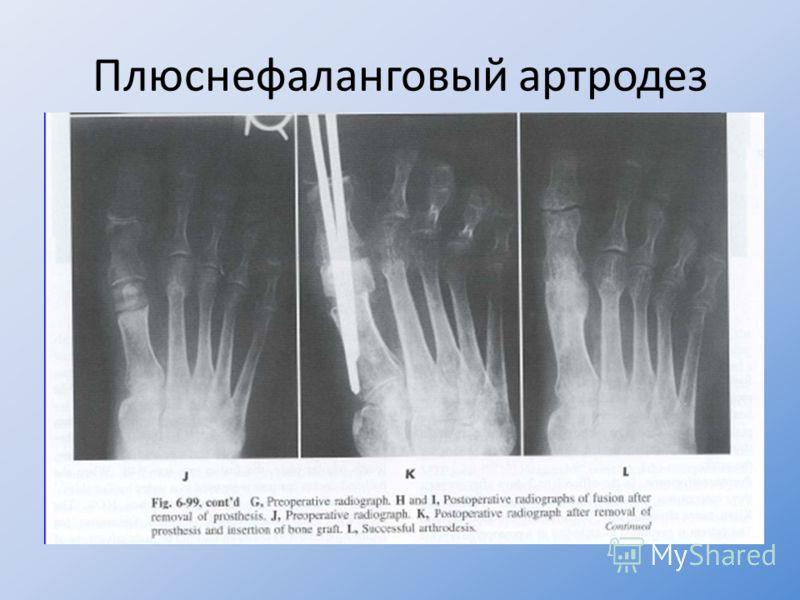 Плюснефаланговый артродез